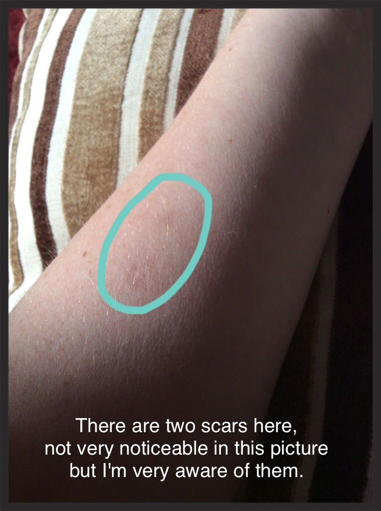 How to make a burn not scar