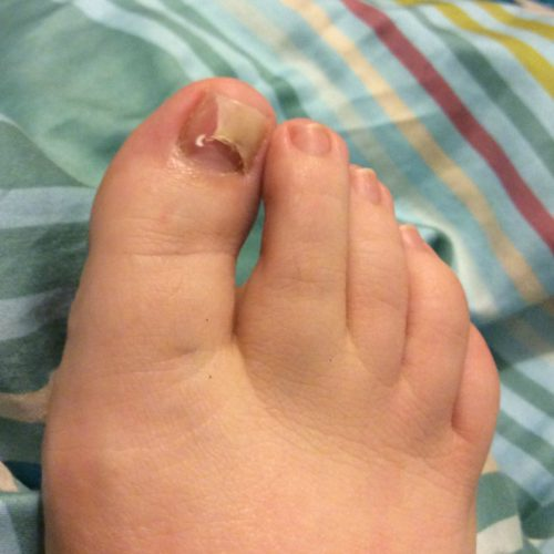 Health: Dealing with a fungal nail infection